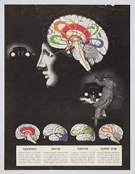 Brain Diagram (Consciousness, Sensation, Perception, Voluntary Action)