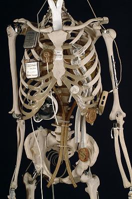 YORICK, The Bionic Skeleton