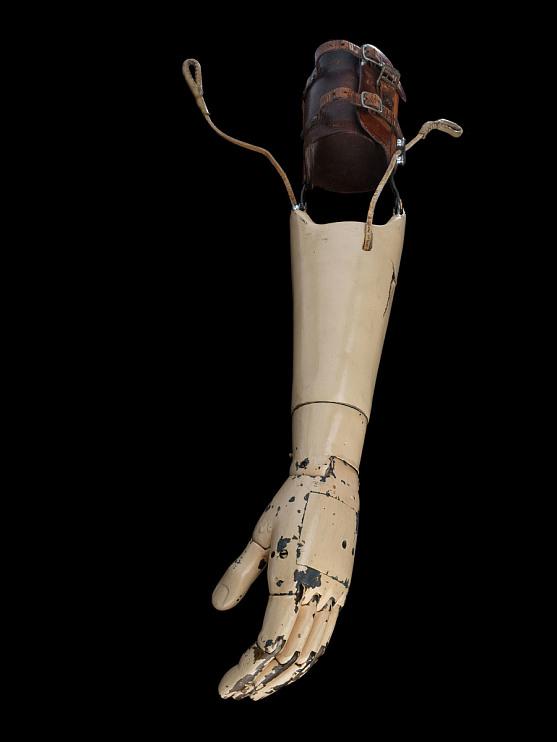 Carnes artificial arm