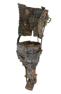 Coal Miner's Prosthetic Leg