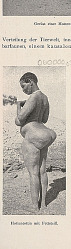 Woman Exhibiting Steatopygia 1903