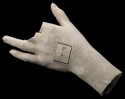 Cast of an Unidentified Woman's Left Hand (two fingers missing)