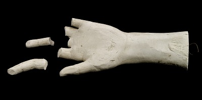 Cast of an Unidentified Child's Left Hand (two fingers partially missing)