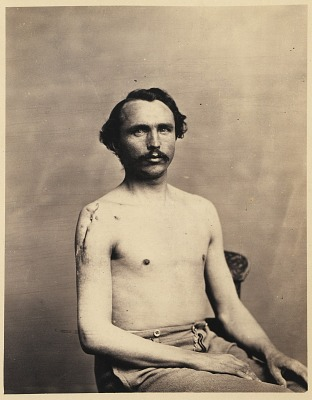 Private Adolph Zirsse, Successful Intermediate Excision of the Head and two and a half inches of the Shaft of the Right Humerus, from the Photographic Catalogue of the Surgical Section