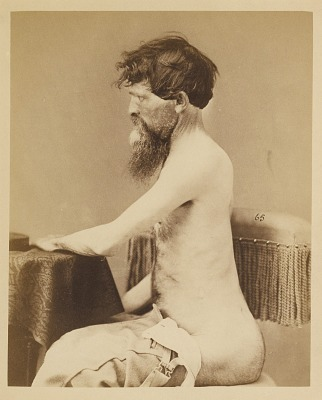 Private John Bar, Recovery after a Penetrating Wound of the Abdomen with Fracture of the Left Os Innominatum, from the Photographic Catalogue of the Surgical Section