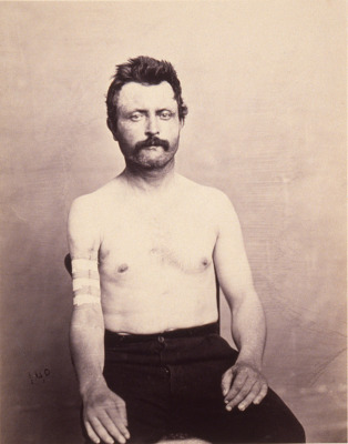 Private John Kelly, Successful Primary Excision of Four inches of the Upper Third of the Shaft of the Right Humerus for Gunshot Fracture, from the Photographic Catalogue of the Surgical Section