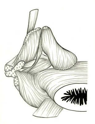 Albula vulpes