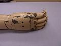 View Carnes artificial arm digital asset: prosthetic arm