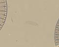 View Pseudo-eunotia larva A. Mann digital asset number 2