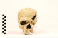 View Steinheim, Fossil Hominid digital asset number 4
