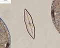 View Mastogloia achnanthoides A. Mann digital asset number 0