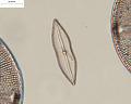 View Mastogloia achnanthoides A. Mann digital asset number 2