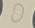 View Surirella bertillonii A. Mann digital asset number 3