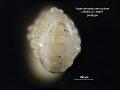 View Vaginulinopsis verruculosa Martin, 1943 digital asset number 1