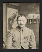 view A World War I soldier before facial reconstruction digital asset number 1