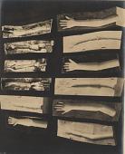 view [Manikin arm parts : black-and-white photoprint.] digital asset: [Manikin arm parts : black-and-white photoprint.]