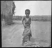 view At Lusambo Sick with sleeping-sickness digital asset: At Lusambo Sick with sleeping-sickness