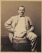 view Private Charles Myer, Amputation of the Right Thigh, from the Photographic Catalogue of the Surgical Section digital asset number 1