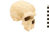 view Steinheim, Fossil Hominid digital asset number 1