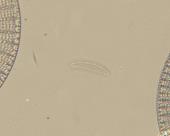 view Pseudo-eunotia larva A. Mann digital asset number 1