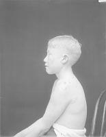 view [Portrait (Profile) of Tcippu, an albino boy] 1924 digital asset number 1