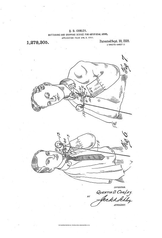 Patent for a buttoning and gripping device for artificial arms