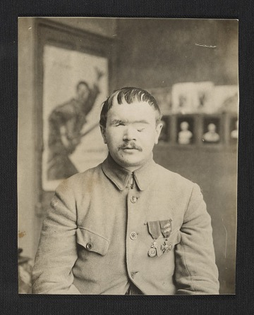 thumbnail image for A World War I soldier before facial reconstruction
