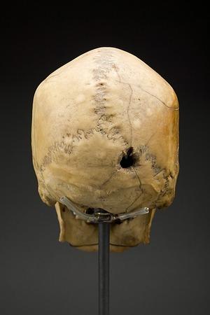 Written in Bone: Bone Biographies