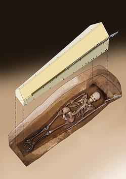 Written in Bone: A Highly Unusual Case