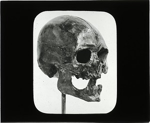 Skull, 1890, Smithsonian Institution Archives, SIA Acc. 12-492 [SIA2012-6571].